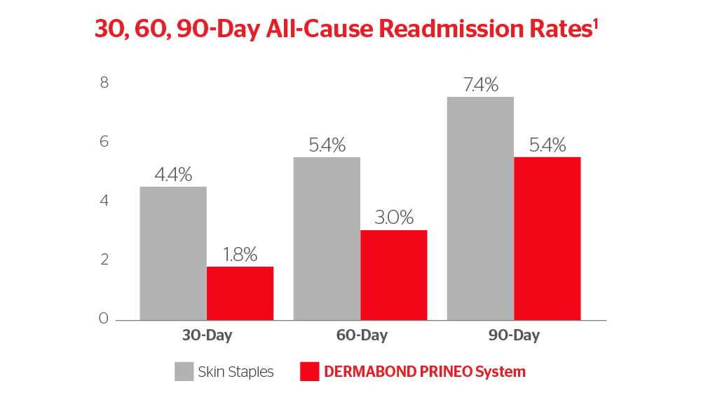 Dermabond Prineo Skin Closure System Ethicon