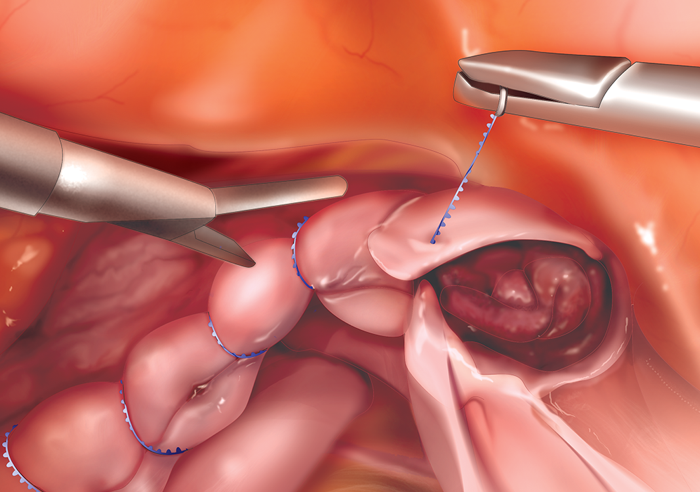 Vaginal After cuff support a hysterectomy